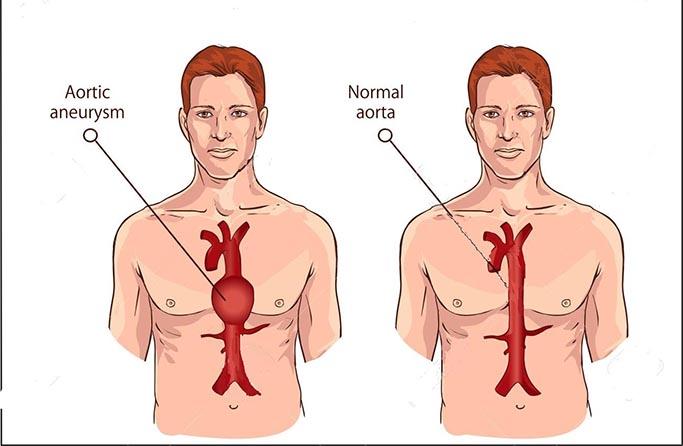 Kjo terapi e panjohur nga mjekët, më riktheu aortën e zgjeruar të barkut, në normalitet!
