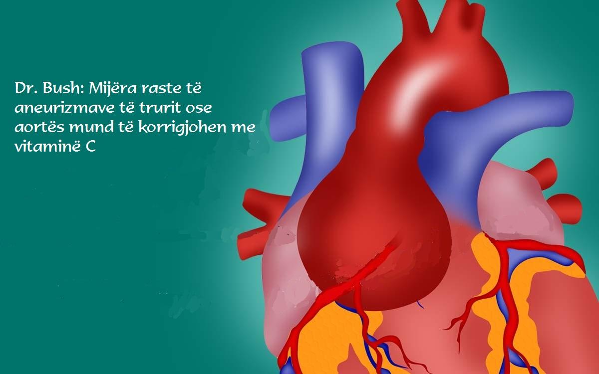 Dr. Bush: Vitamina C heq zgjerimin e aortës dhe enëve të gjakut në tru