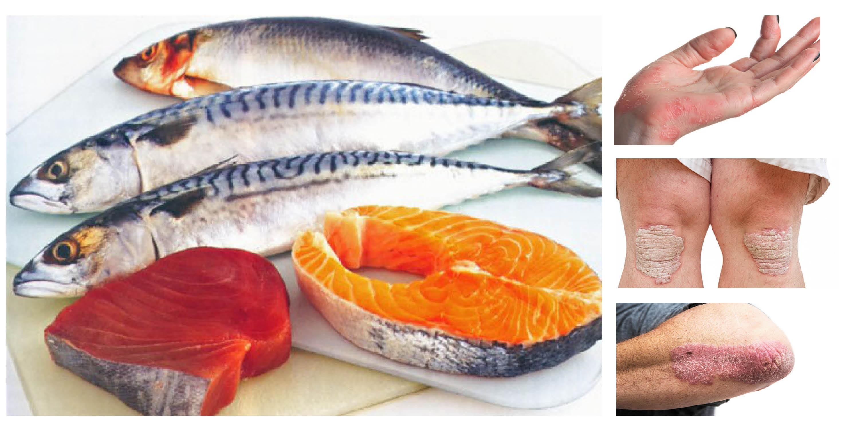 Prof. Saul dëshmon shërimin e psoriazës me agjërim me lëng perimesh dhe peshk